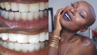 How To Whiten Teeth And Keep Them White Giveaway Closed Vloggest