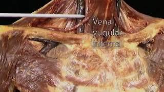 Cava hipertensión superior venosa