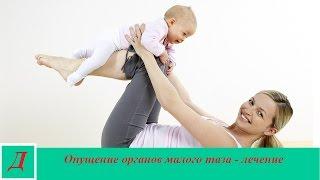 видео Опущение матки: гимнастика, фитотерапия