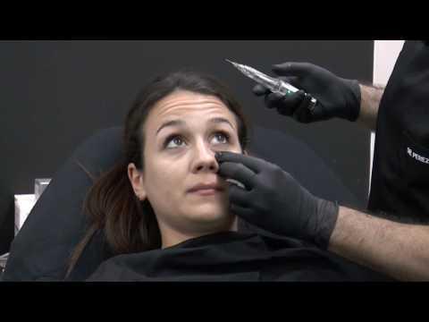 Tratamiento Ojeras
