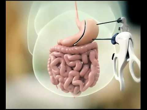 La sleeve gastrectomy laparoscopica - Videoanimazioni interventi bariatrici