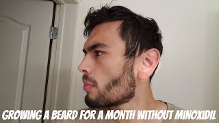 Growing My Beard out for a Month Without Minoxidil After 2 Years