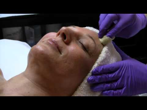 Perfect Derma Peel Skin Treatment | Moradi MD