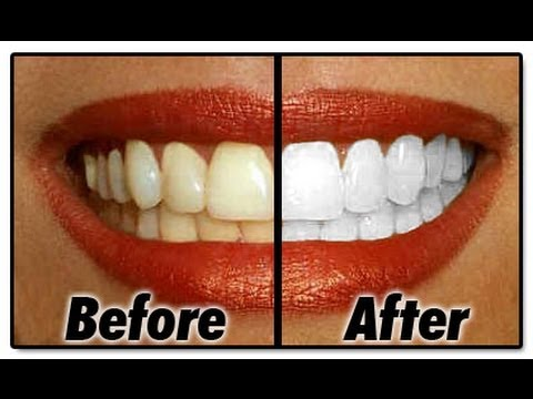 how to get whiter teeth instantly
