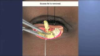 Eyelid Surgery Patient Education Thumbnail