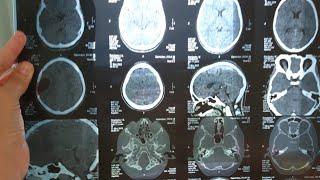 ВЛОГ Компьютерная томография головного мозга Почему нельзя МРТ после операции ?