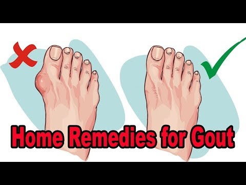 HOW TO CURE GOUT NATURALLY!! 6 NATURAL HOME REMEDIES FOR GOUT!! FOOTLOOSE