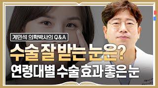 연령대별 수술 효과가 좋은 눈+ 상담 및 수술 전 고려…