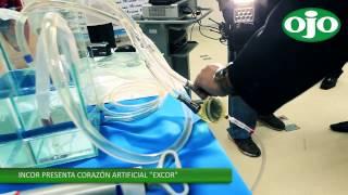 Conoce el Corazón Pulmón Artificial del Instituto del Corazón