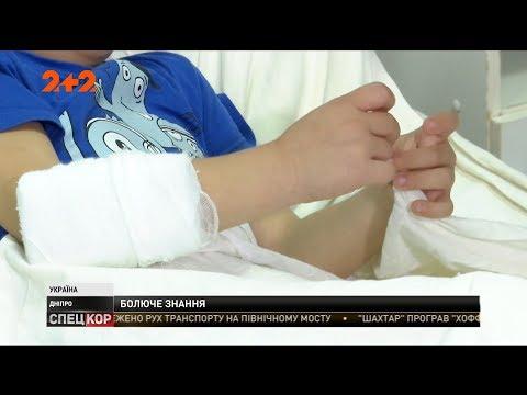 СПЕЦКОР | Новини 2+2: У Дніпрі першокласник впав із третього поверху своєї школи