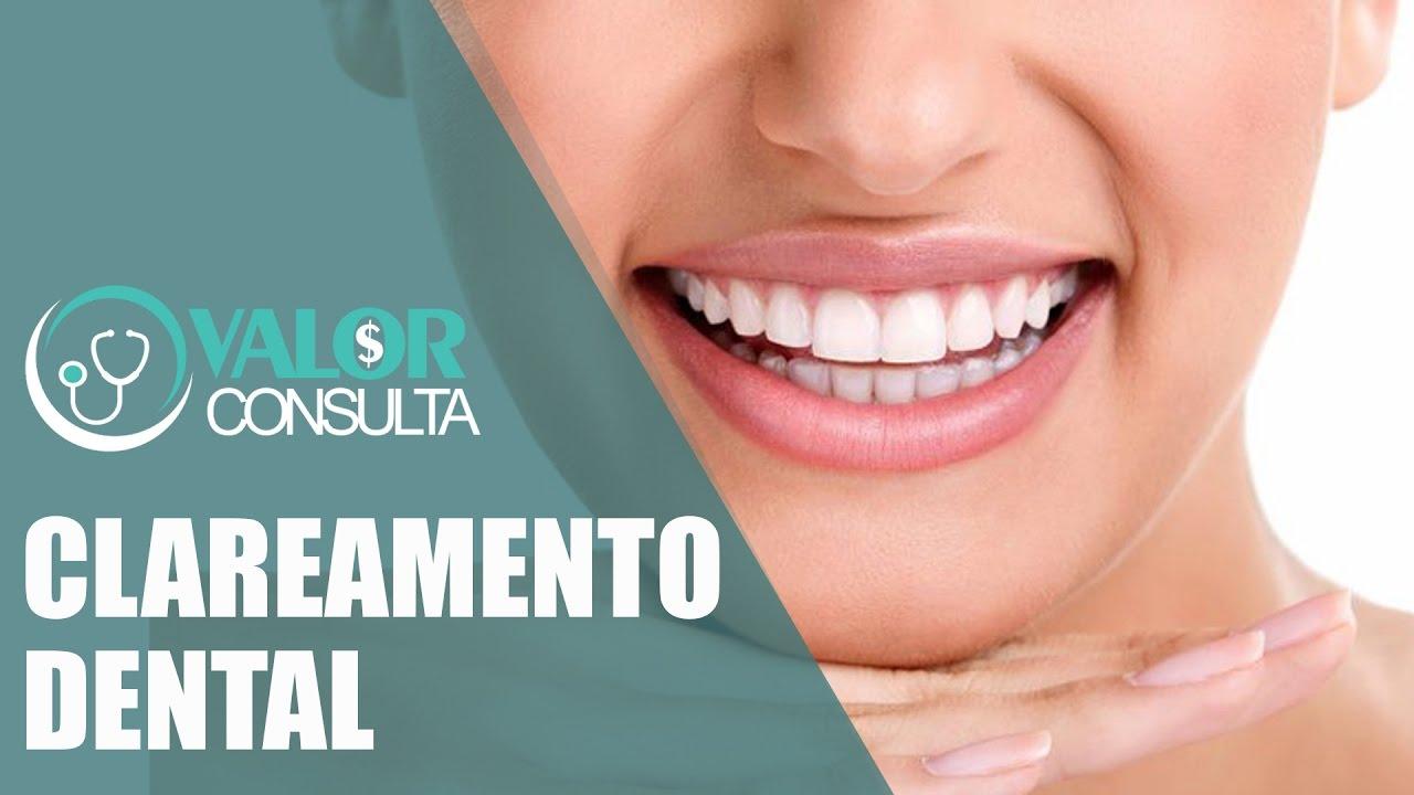 Clareamento Dental Preco Antes E Depois Em Fortaleza Sao Paulo