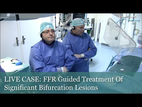 LIVE CASE: FFR Guided Treatment Of Significant Bifurcation Lesions