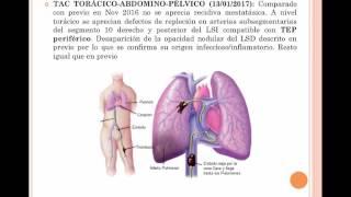 Transverso trombosis tratamiento venoso del de seno
