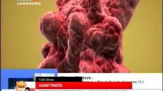 Kanker #KankerPayudara #KompasTVSorong..