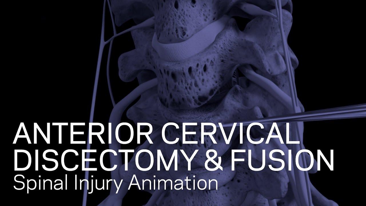 C5-6/C6-7 Anterior Cervical Discectomy with Fusion