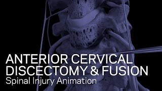 C5-6/C6-7 Antérieur Discectomie Cervicale avec Fusion