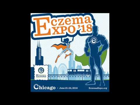 Eczema Expo '18 Kids Camp - Top 5 reasons to attend