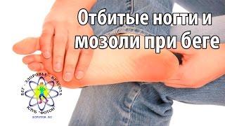 Отбитые ногти и мозоли на ногах из-за бега. Причины и лечение(Чтобы заказать индивидуальную программу по подготовке к бегу на средние и длинные дистанции заполните..., 2016-07-07T13:00:02.000Z)