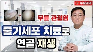 [무릎 관절염] 무릎 관절염/무릎 통증, 줄기세포 이식…