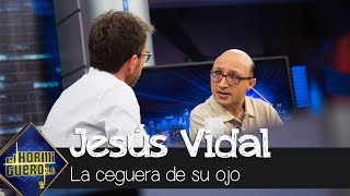 Jesús Vidal explica la enfermedad que le dejo ciego en uno de sus ojos - El Hormiguero 3.0