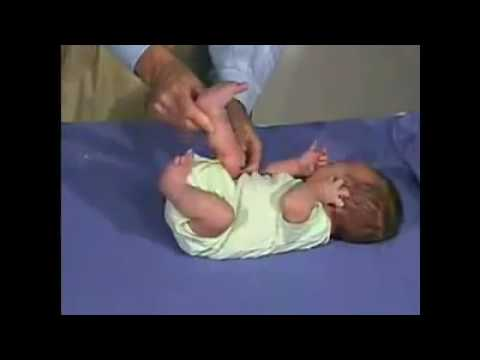 Neurological Examination Of The Newborn