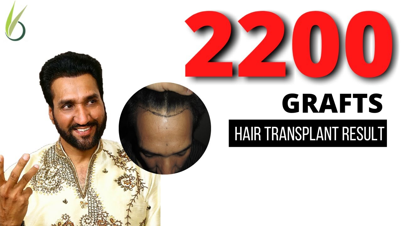 Hair transplant long-term result: 2200 grafts Grade 3 (Vertex) | Darling Buds