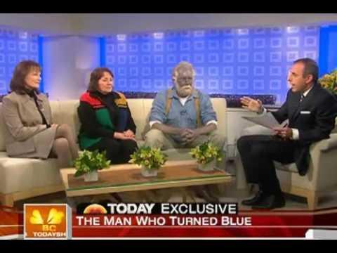 Man Found With Blue Flesh
