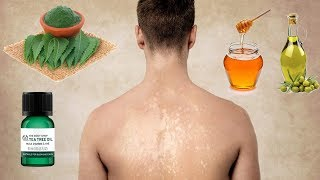 11 Natural Remedies For Tinea Versicolor You Can Get At Home
