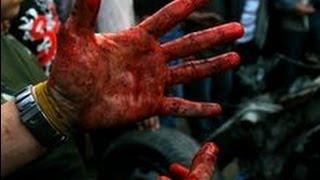 В руках продавца техники взорвался аккумулятор мобильника. Офигеть!!!(Житель турецкого города Зонгулдак получил серьезные ранения после того, как у него в руках взорвалась акку..., 2013-08-21T12:55:39.000Z)