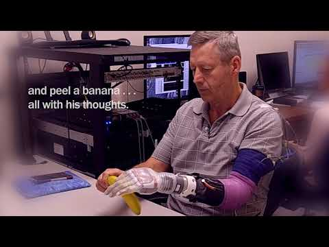 This Robotic Arm Inspired by Luke Skywalker Has Allowed an Amputee to Feel Again