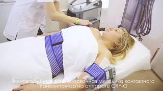 CRY O от ТМ Sorisa: комфортный криолиполиз