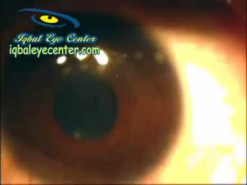 how to know if thin cornea