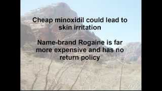Does Rogaine Really Work?