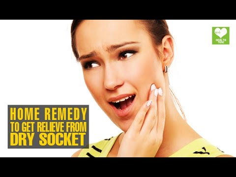 Home Remedies To Get Relieve From Dry Socket Alveolar Osteitis