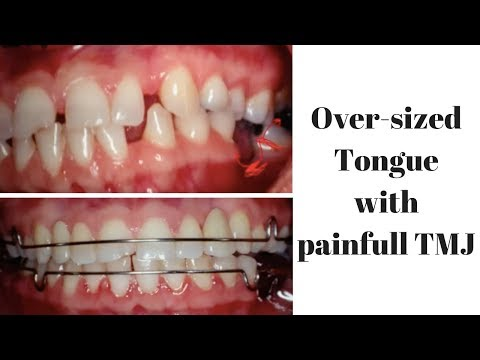 Over-sized Tongue with painfull TMJ
