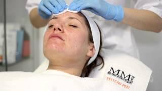 peeling medyczny Mandel S - trądzik, skóra łojotokowa, blizny potrądzikowe