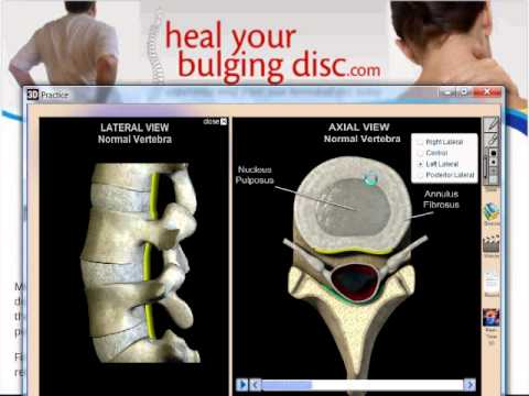 Best options for herniated disc