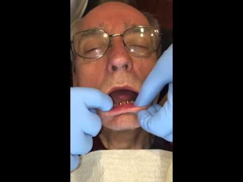 Dental implants Oklahoma city