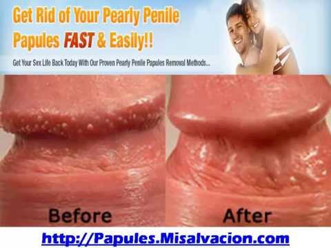 How to cure pearly penile papules at home