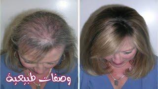 الوصفة السحرية لعلاج تساقط الشعر وتقويته بسرعة هائلة وبمكونات بسيطة