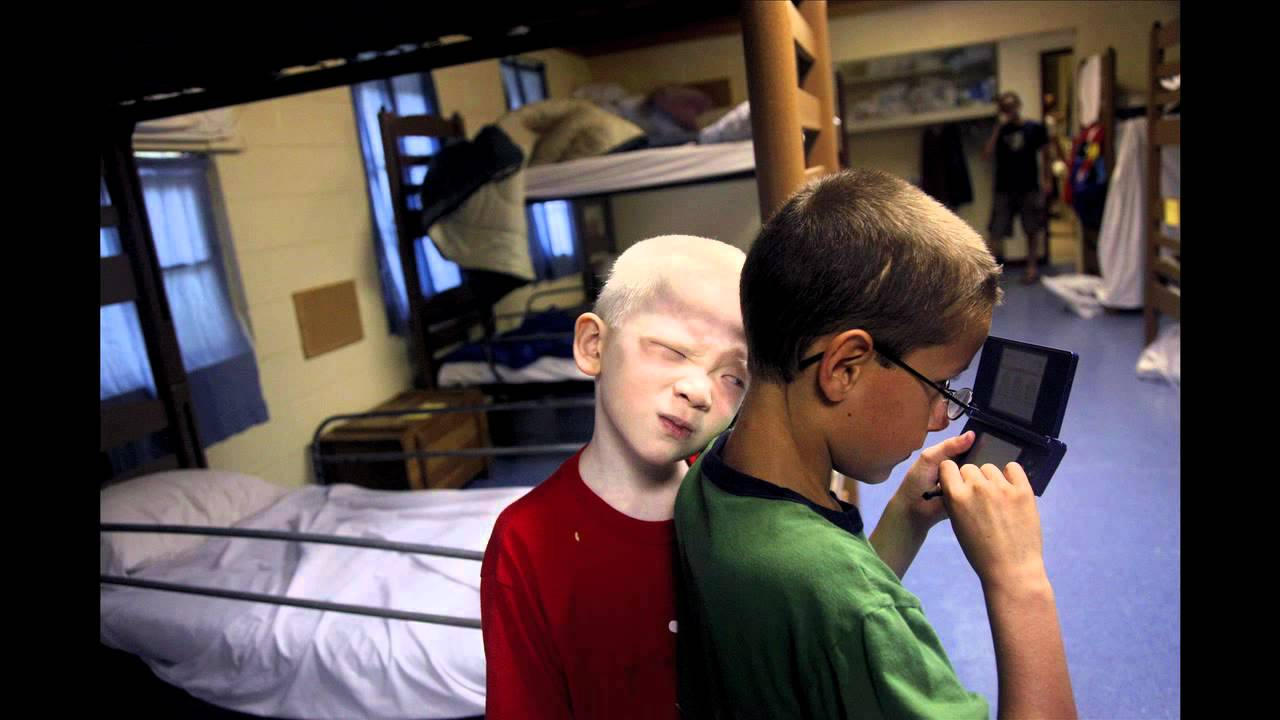 chosen ones couple adopts chinese boys with albinism