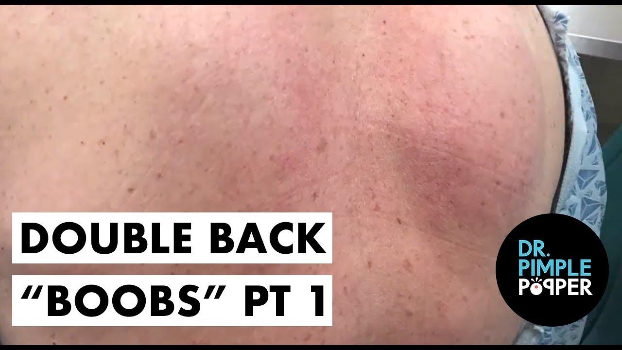 Backboobs