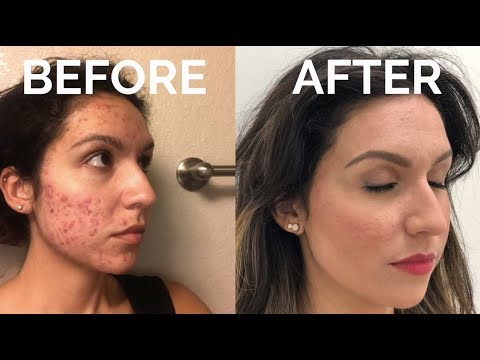 Life-Changing Acne Transformation