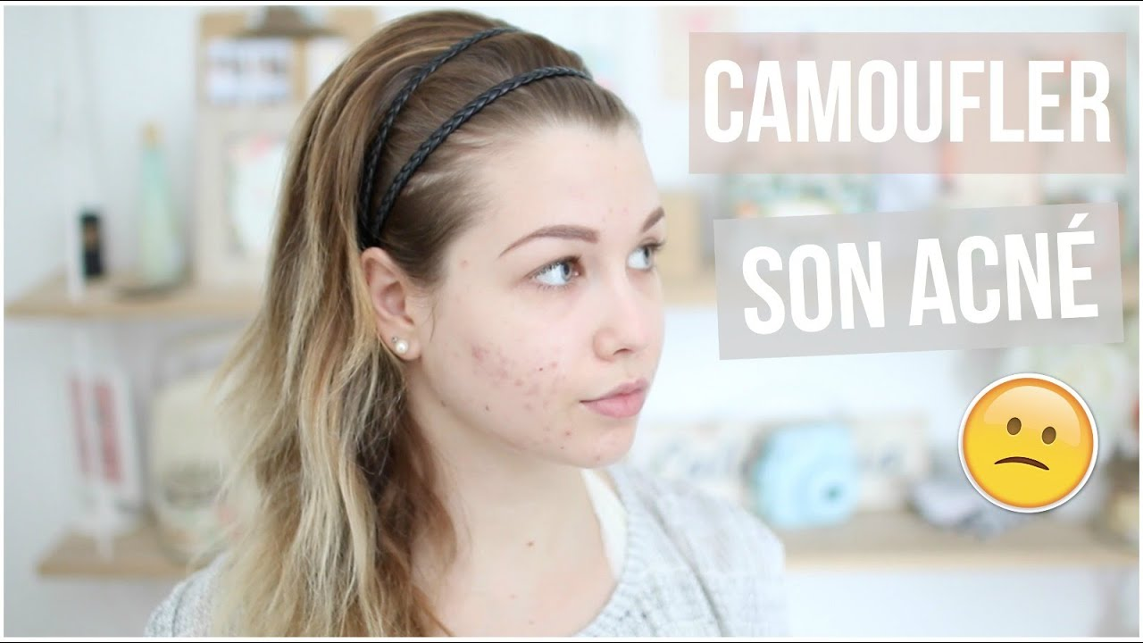 Extrêmement Tutoriel Maquillage n°34 ] : CAMOUFLER SON ACNÉ ! - YouTube LN08