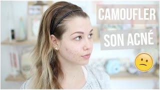 [ Tutoriel Maquillage n°34 ] : CAMOUFLER SON ACNÉ !