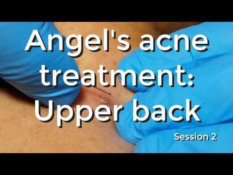 Angel's Acne Treatment: Upperback - Session #2
