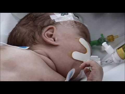 Selecting Infant Feeding for Preemies