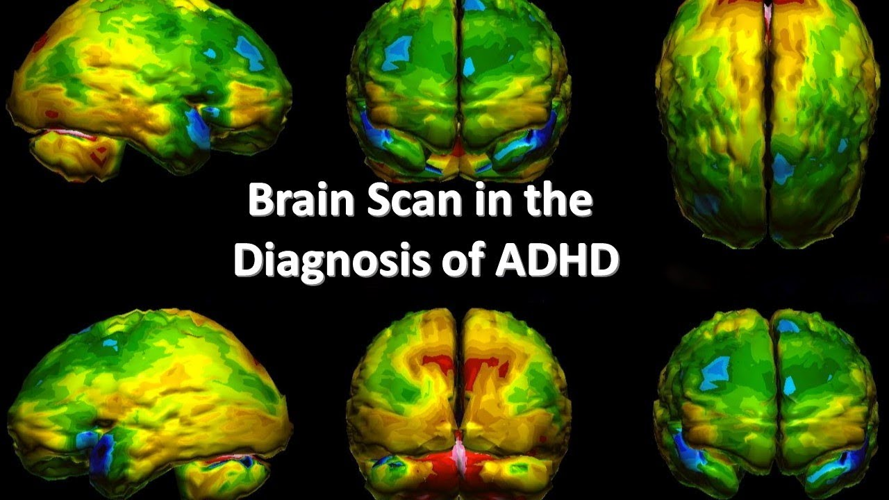Brain Scan In The Diagnosis Of ADHD