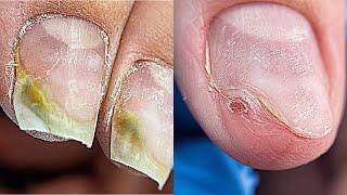 Плесень на ногтях Отправили на анализ Что сказал врач Маникюр на клиенте