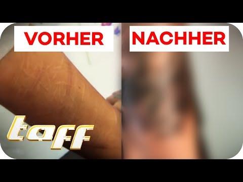 Cover Up Für Narben Vom Ritzen   Taff   ProSieben
